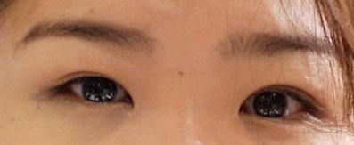 左目が二重、右目が奥二重