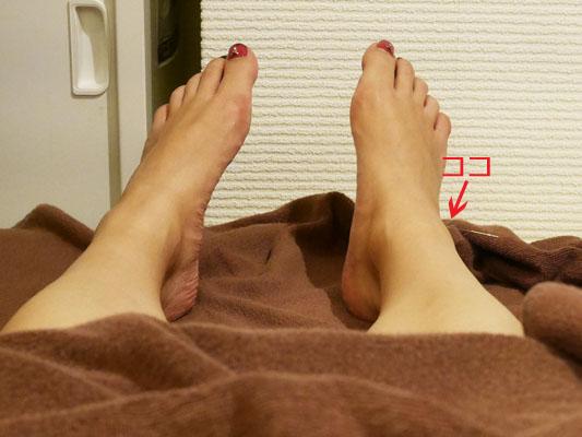 赤坂 美容鍼 美馬メディカルエステ 鍼 効果