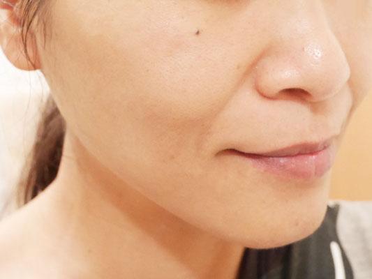 MAMEW マミュ クレンジング 効果 透明感 使用後の写真 口コミ