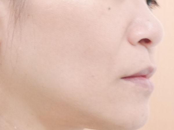 韓国コスメ セレンディビューティー バブルトックスクレンザー 使用後 感想