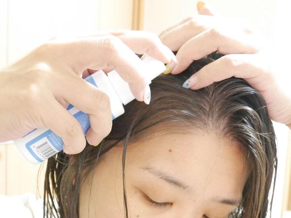 アクティバートforデイリー SCスカルプローション 薄毛・白髪予防